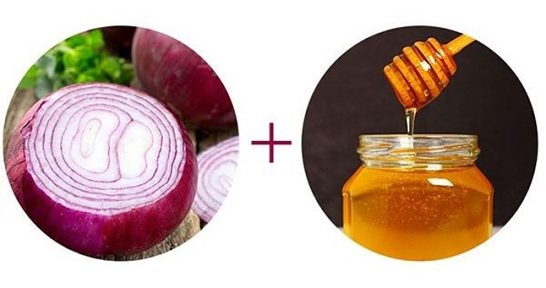 Kết hợp mật ong và hành tím với nhau sẽ tạo thành mặt nạ trị tàn nhang hiệu quả ngay tại nhà.
