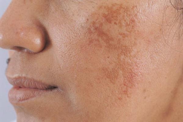 Qủa dứa giàu vitamin C giúp chống oxy hóa, dưỡng trắng da và làm mờ các vết nám trên da hiệu quả.