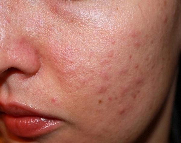 Mụn không chỉ gây cảm xác ngứa rát khó chiu mà còn khiến gương mặt trở nên kém sắc, gây khó khăn cho quá trình trang điểm.