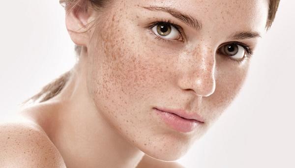 Do sự sản sinh melanin quá mứcvà phân bố không đồng đều sẽ gây nên những vùng da đậm màu là nám hoặc tàn nhang.