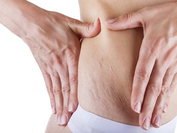 Cách trị rạn da bằng dầu oliu và vitamin E được các chị em áp dụng rất phổ biến ngay tại nhà.