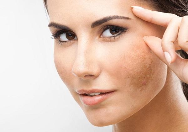 Thành phần Vitamin E, C trong đậu đỏ giúp da bạn trắng sáng mềm mịn, giảm sự hình thành các sắc tố melanin.