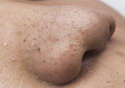 Cách trị mụn đầu đen ở mũi triệt để nhất
