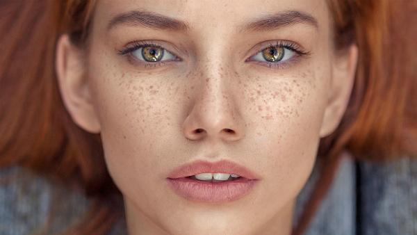 Tàn nhang hình thành trên da khiến làn da trở nên kém sắc và gây ảnh hưởng không nhỏ tới cuộc sống của chị em.
