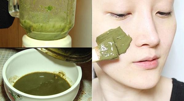 Phương pháp điều trị nám da này cũng đem lại hiệu quả khá cao lại rất an toàn cho làn da.