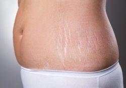 2 cách trị rạn da sau sinh hiệu quả từ nghệ