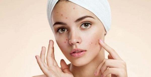 Mụn mọc trên da là hiện tượng phổ biến và gây ảnh hưởng nghiêm trọng tới thẩm mỹ, khiến chị em tự ti trong giao tiếp.