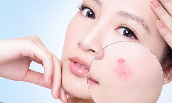 Mặt nạ từ nước ép tỏi tươi giúp trị mụn bọc an toàn, hiệu quả mà không gây tổn thương cho làn da.