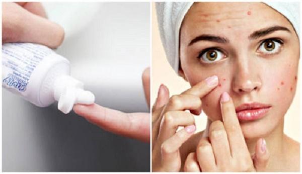 Phương pháp trị mụn bằng kem đánh răng giúp giảm bã nhờn và loại bỏ được các tác nhân gây mụn.