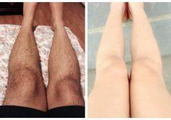 Cách triệt lông chân an toàn nhất bạn nên thử