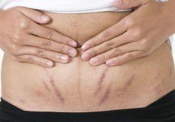 Có thể chữa rạn da sau sinh khỏi hoàn toàn không?