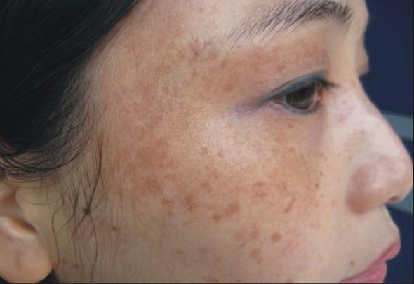 Dầu ô liu có tác dụng loại bỏ nám da nhanh chóng, đồng thời nuôi dưỡng làn da tươi trẻ tự nhiên.
