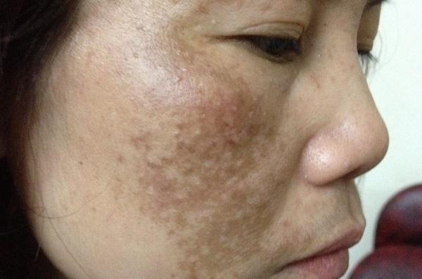 Thành phần curcumin trong loại củ này có tác dụng chữa lành vết thương, ngăn ngừa sản sinh hắc sắc tố melanin.