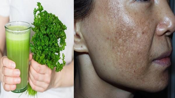 Mặt nạ từ rau mùi giúp loại bỏ nám da nhanh chóng lại không gây kích ứng làn da nhạy cảm.