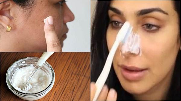 Sử dụng kem trộn giúp loại bỏ nám da nhanh nhưng tiềm ẩn nguy cơ gây tổn thương làn da rất cao.