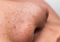 Đắp mặt nạ có trị mụn đầu đen ở mũi triệt để?