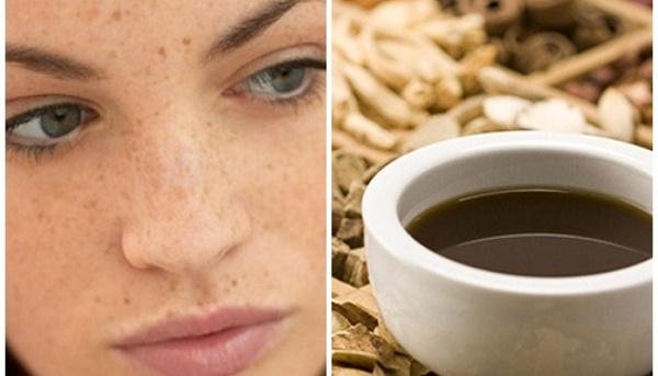 Sử dụng thảo dược đông y bôi ngoài da giúp loại bỏ nám tàn nhang nhanh chóng mà không gây tổn thương da.
