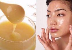 Trị tàn nhang hiệu quả bằng sữa ong chúa