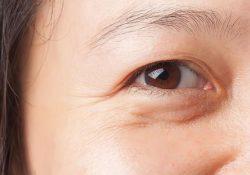Bí quyết khắc phục da nhăn nheo vùng mắt