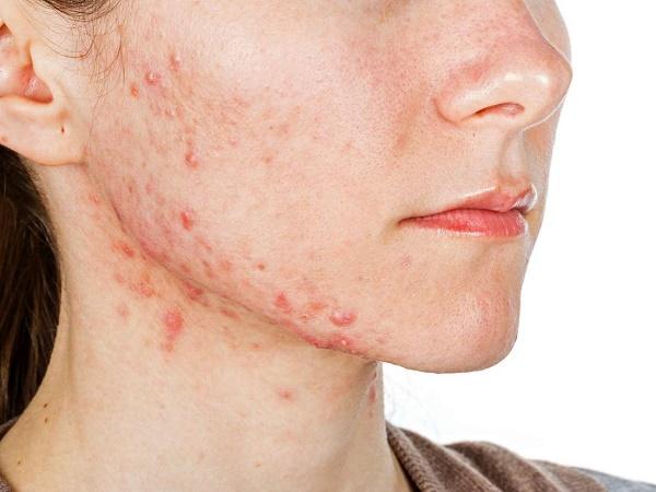 Mụn xuất hiện nhiều trên mặt không chỉ gây cảm giác đau rát khó chịu mà còn để lại vết thâm xấu xí trên da.