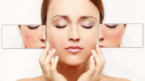 Mặt nạ nha đam giúp cung cấp dưỡng chất nuôi dưỡng làn da sáng mịn tự nhiên.