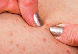 Dấu hiệu nhận biết viêm nang lông ai cũng cần đề phòng