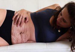 Da bụng nhăn nheo sau sinh phải làm sao?