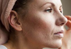 Lão hóa da sớm: Những dấu hiệu nào giúp nhận biết?