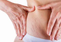 Tôi từng không tin có thể trị rạn da sau sinh