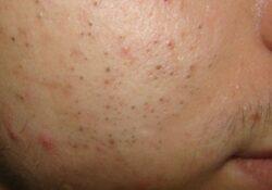 Có cách trị mụn đầu đen ở má nào triệt để không để lại sẹo không?
