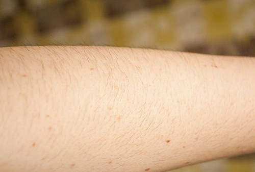 Tẩy lông tay từ dao cạo