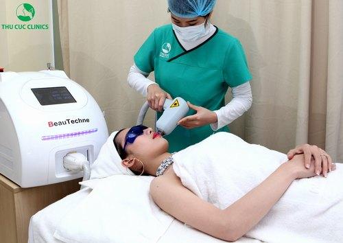 Tẩy lông mặt bằng laser Diode tại Thu Cúc Clinics.
