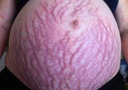 Bụng rạn khi mang thai – Xót xa nhưng đừng quá lo lắng