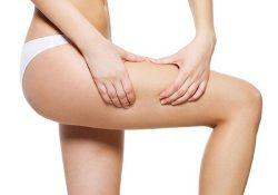 Những điều cần biết về bệnh rạn da ở tuổi dậy thì