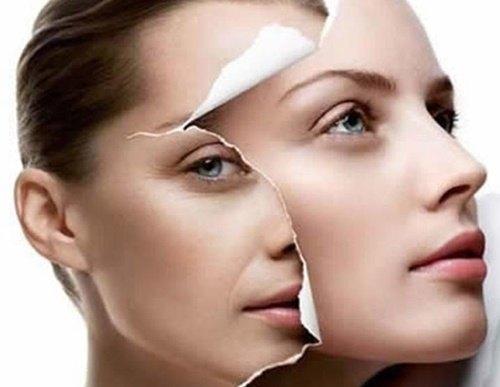 Với liệu pháp thay da sinh học chuyên nghiệp, làn da nám sạm sẽ được thay thế bằng lớp da tươi mới, khỏe mạnh.